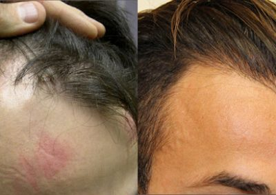 Before And After FUE Hair Transplantation