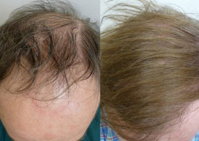 Before And After Amazing Hairline Restoration, 48 Year old Male, 2500 Grafts