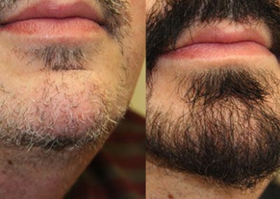 Before And After Beard Restoration – 933 Grafts
