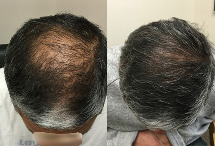 Before And After FUE Procedure, 50 year old male, 3000 grafts