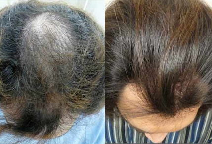 Before And After Crown Restoration, 3738 grafts