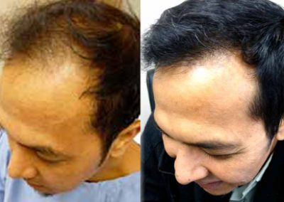 Before And After Graft Strip Surgery, 45 Year Old Male, 3500 Grafts