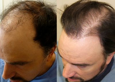 Before And After, 43 year old male, 2700 grafts