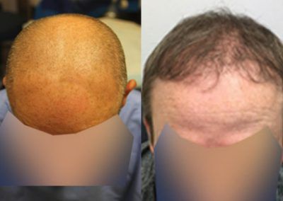 Before And After FUE Procedure, 45 year old male, 3000 Graft