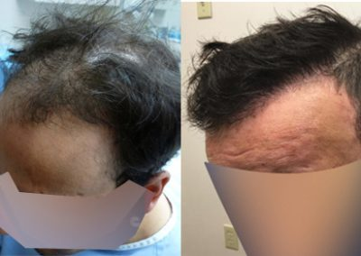 Before And After Graft strip Procedure, 38 year old male, 3800 Graft
