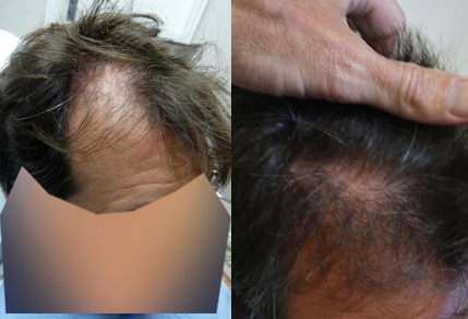 Before and After hairline repair Procedure, 48 year old male, 1800 grafts