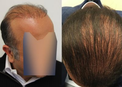 Before and after Plug repair procedure, 50 year old male, 5000 grafts