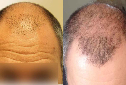 Before And After FUE Procedure, 42 Year Old Male, 3000 Grafts