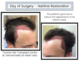 Day of Surgery - Hairline Restoration