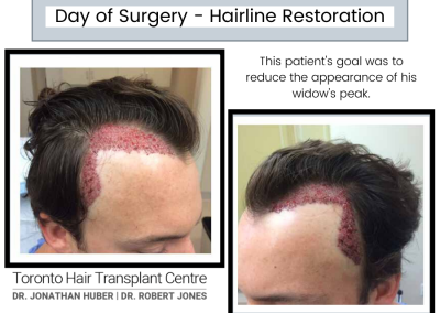 Day Of Surgery – Hairline Restoration, 2500 grafts