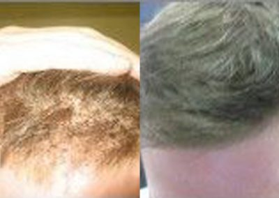 Before And After Crown Restoration, 3000 FUE
