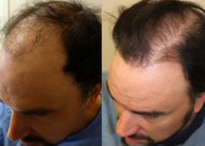 Before And After Hair Transplants, 43 year old male, 2700 grafts
