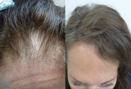 Before And After Hair Restoration, 50 years old Female, 1500 grafts