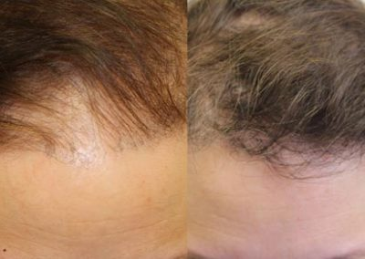 Before And After Hair Transplant procedure, 52 year old Female, 2036 grafts