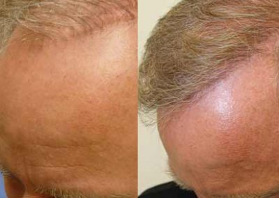 Before And After Revision Hair Transplant, 50 years old male, 3200 graft strip