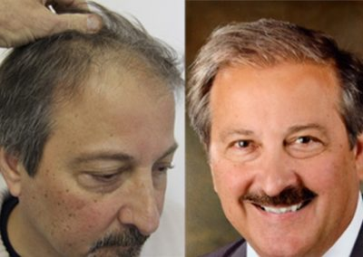Before And After Hair Transplant, 62 Year Old Male