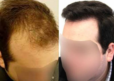 Before And After Hair Transplant Procedure, 40 Year Old Male,  3700 Grafts