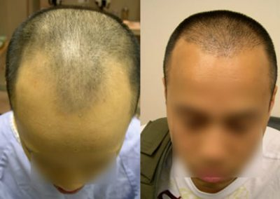 Before And After Hairline Restoration