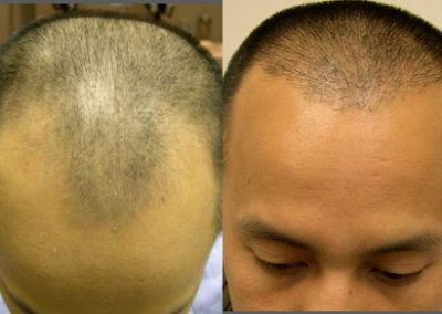 Before And After Hairline Restoration, 35 years old male, 1500 Grafts