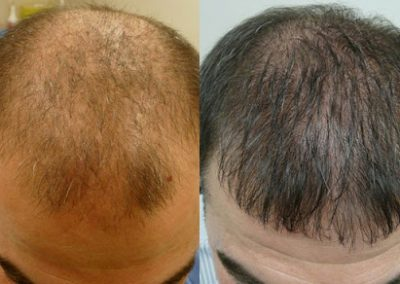 Before And After  Crown and Hairline Procedure, 40 years old male, 3000 Grafts