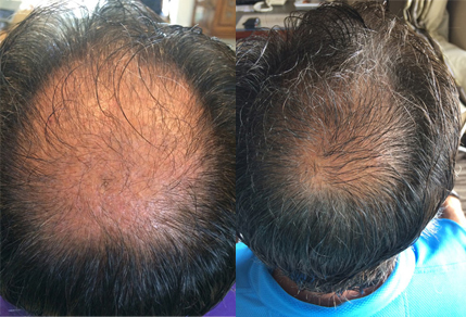 Before And After Grafts Strip Surgery, 50year old male, 3000 grafts