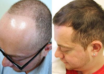 Before And After FUE Procedure, 6000 Grafts
