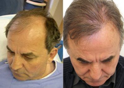 Before And After Hair Transplant Procedure, 60 Year Old Male, 3000grafts