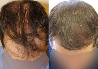 Before And After Strip Procedure, 40 Year Old Male, 3000 Grafts