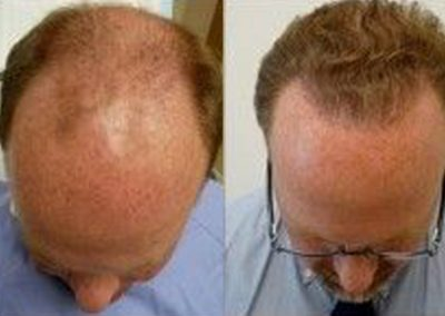 Before And After Crown Procedure, 3000 FUE Grafts