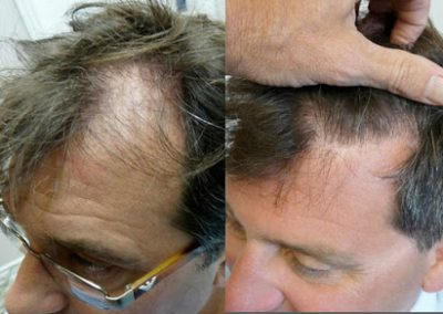 Before And After Hair Line Procedure, 51 Year old male, 1700 Grafts