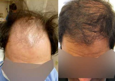 Before And After Strip Procedure, 52 Year Old Male, 3500 Grafts