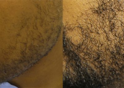 Before And After Beard Transplant Procedure
