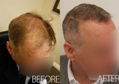 Before And After Graft FUE, 45 Year Old Male, 3000 Grafts