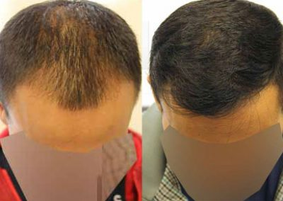 Before And After Graft FUE Procedure, 30 Year Old Male, 2000 Grafts
