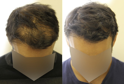 Before And After Graft Hair Transplant Procedure, 35 Year Old Male, 3500 Grafts