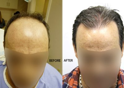 Before And After Graft Strip Surgery, 47 Year Old Male, 3500 Grafts