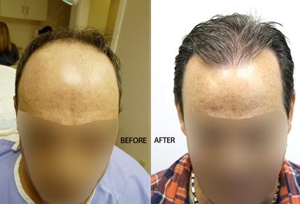 3500-Graft-Strip-Surgery-47-Year-Old-Male-FI