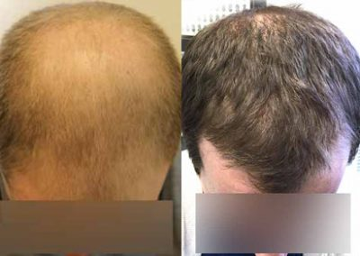 Before And After FUE Procedure, 33 Year Old Male, 3500 Grafts