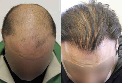 Before And After Graft Strip Procedure, 42 Year Old Male, 4200 Grafts
