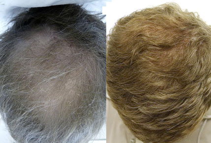 Before And After Graft Hair Transplant, 40 Year Old Male, 5200 Grafts