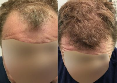 Before And After hairline procedure, 1500 grafts