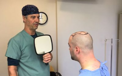 In depth look at a recent 3000-graft FUE hair transplant