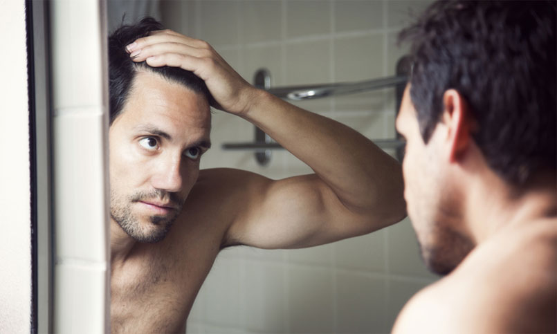 When And Why You Should Consider Having A Hair Transplant