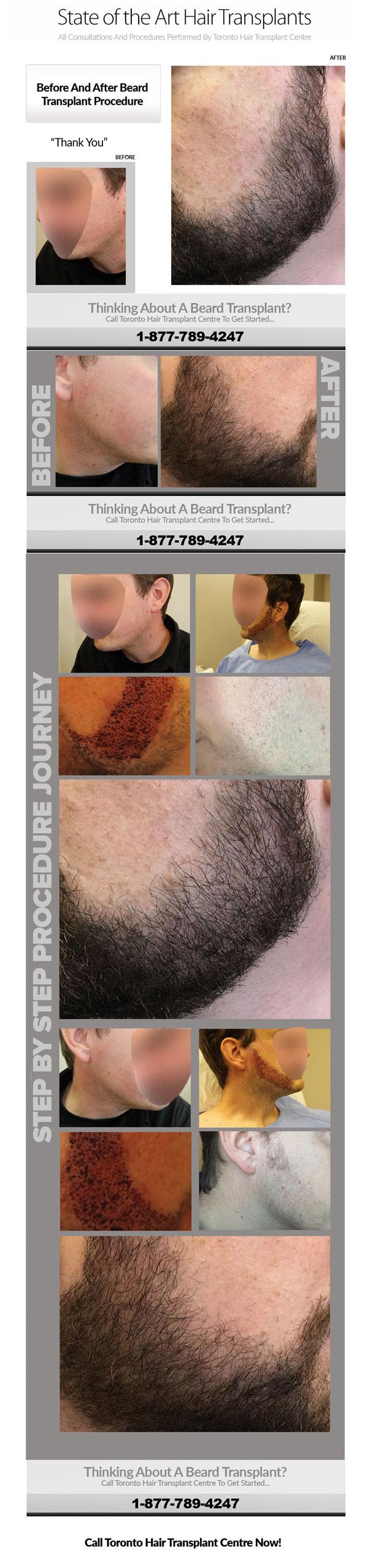 Beard-Transplants-Case-Study