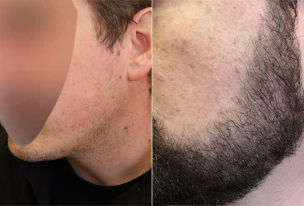 Before And After Beard Transplant Case Study
