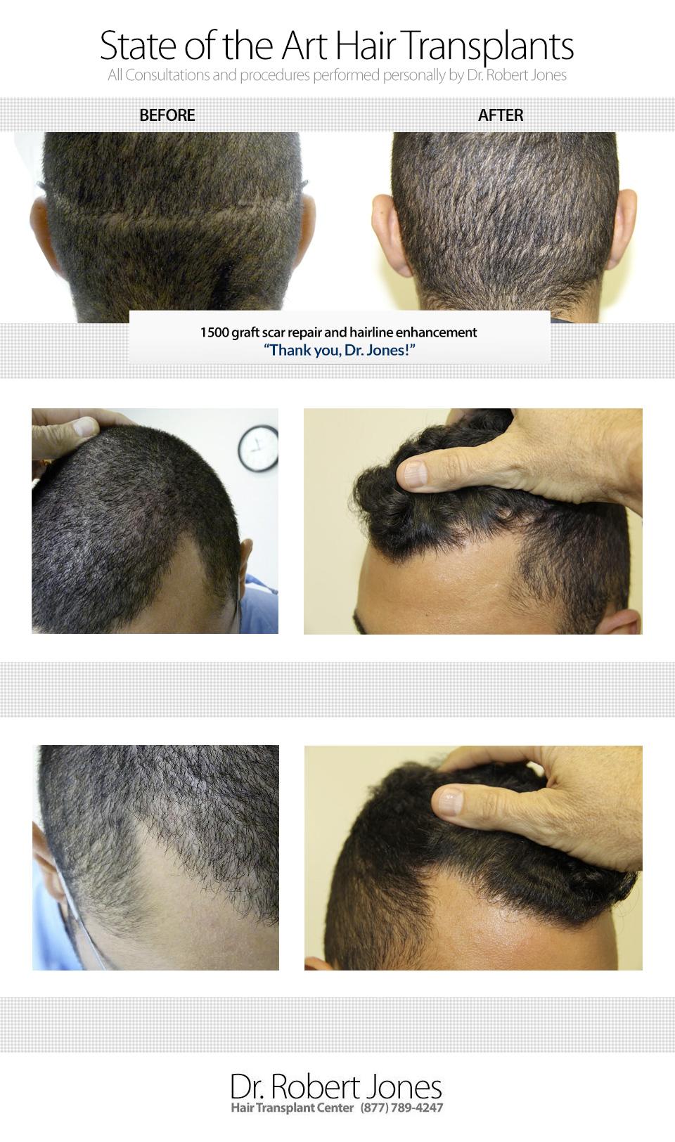 1500-graft-scar-repair-and-hairline-enhancement