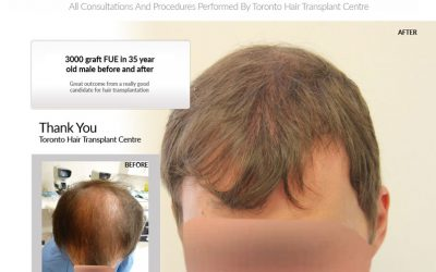 3000 Graft FUE Hair Transplant
