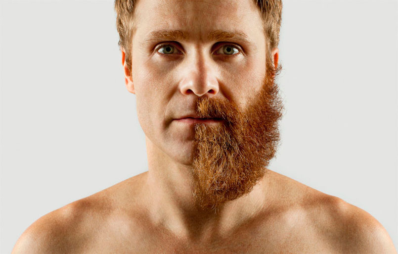 Beard Transplants Destroying Razor Industry