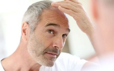 Is Propecia or Rogaine an Alternative To Hair Transplantation?