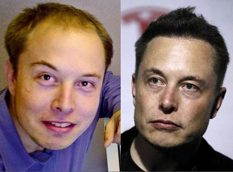 Did Elon Musk Have a Hair Transplant?